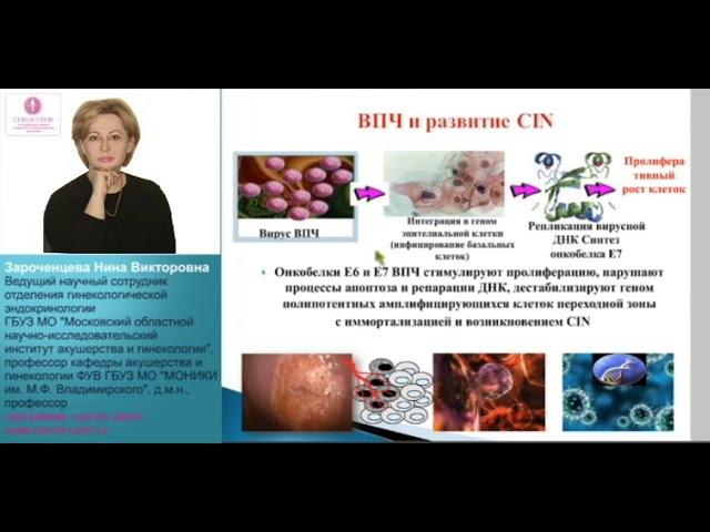 Интраэпителиальные поражения шейки матки легкой и тяжелой степени: диагностика...