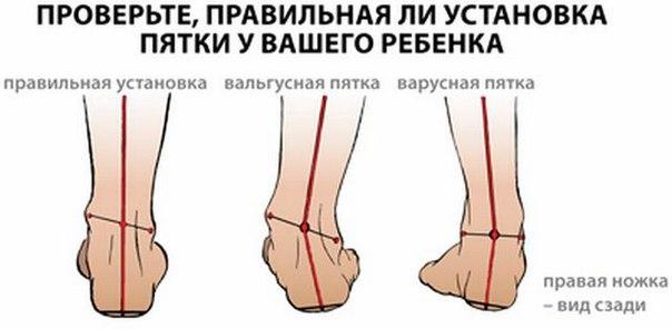Вальгусная деформация стопы представляет собой
