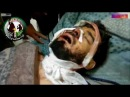 СНАЙПЕРЫ В СИРИИ. ЖУТКИЕ КАДРЫ ПОПАДАНИЯ В ГОЛОВУ СНАЙПЕРАМИ. ОСТОРОЖНО 16 воина в Сирии.