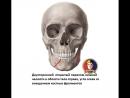 Челюстно-лицевая хирургия - Двусторонний перелом нижней челюсти в области тела справа, угла слева со смещением