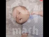В Ростовской области родился малыш без руки и ног