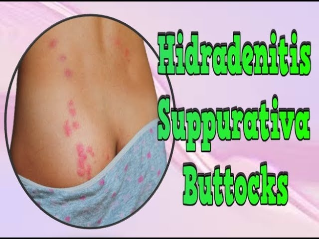 Hidradenitis Suppurativa Buttocks, Herbs For Hidradenitis Suppurativa, Acne Inversa Diet