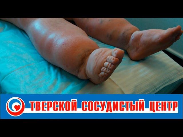 Лечение лимфедемы, лимфостаза (слоновость)