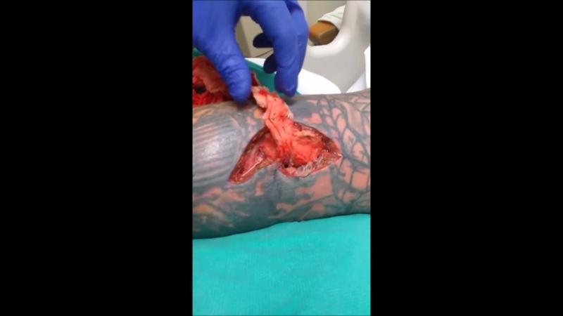 Извлечение бинта тампонированной раны | Группа Медицина и Первая Помощь в автономе club122140577