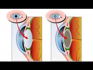 Применение флуревитов при различных видах катаракты