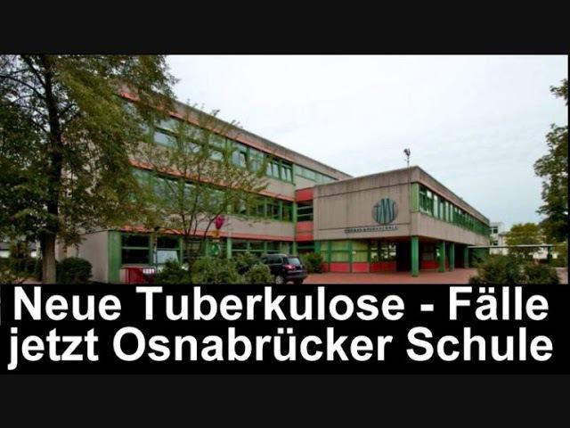 Weitere Tuberkulose Fälle diesmal Osnabrück