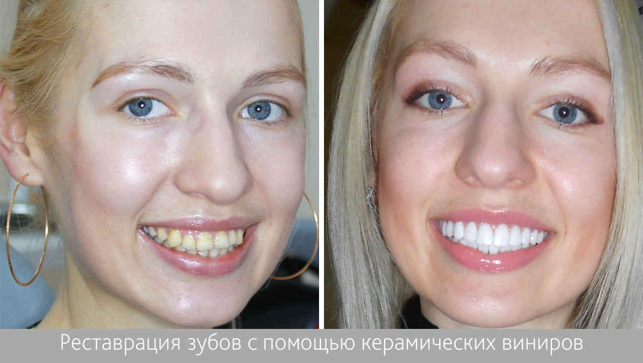Виниры на передние зубы: цена в СПб