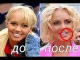 МАША МАЛИНОВСКАЯ до и после ПЛАСТИКИ. ЛУЧШИЕ фото РОССИЙСКИХ И ЗАРУБЕЖНЫХ знаменитостей.
