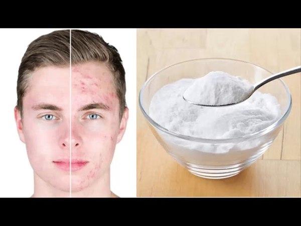 Cómo eliminar el acné naturalmente