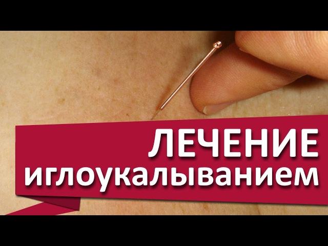 Иглоукалывание. ✹ Снять боль в желудке поможет иглоукалывание. МДЦ ОЛИМП