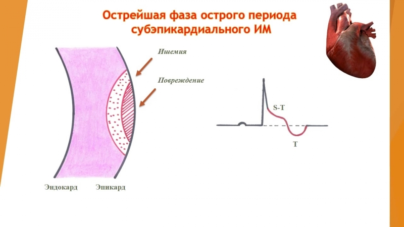 ЭКГ диагностика инфаркта миокарда