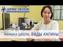 Виды ангины. Различие вирусной и бактериальной ангины. Клиника Здоровое поколение Барнаул
