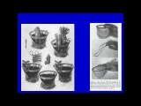 History of Cardiac Surgery and Anesthesia - Dr. Hessel