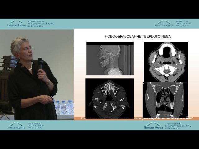 Особенности КТ-обследования пациентов с новообразованиями челюстно-лицевой об ...