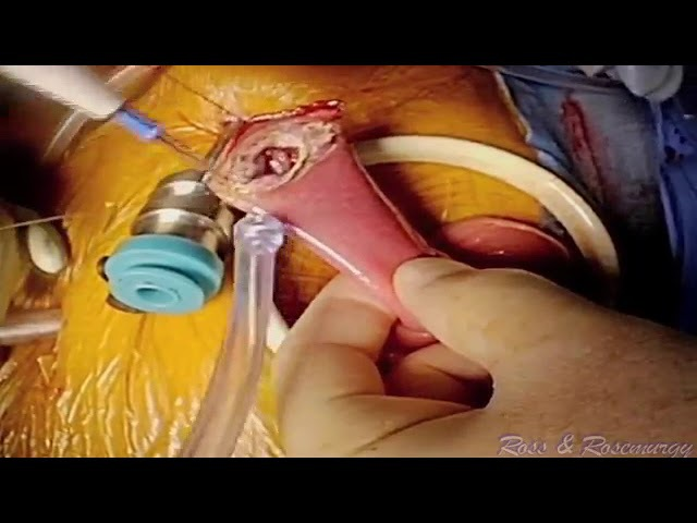 Combined Robotic/Laparoscopic Total Gastrectomy with Distal Pancreatectomy and Splenectomy