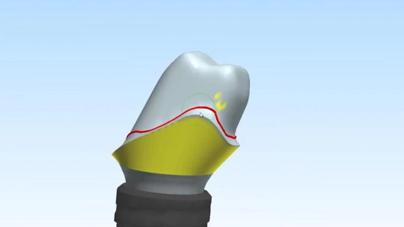 Custom Abutment DesignDesign of a Straumann titanium custom implant abutment for a KDZ Bruxer® crown.