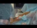 Операция в Клинике современной флебологии эндовазальная лазерная облитерация вен