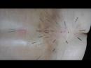 фильм 55 акупунктура massaj v krasnogorske cena lechenie pozvonochnih grij