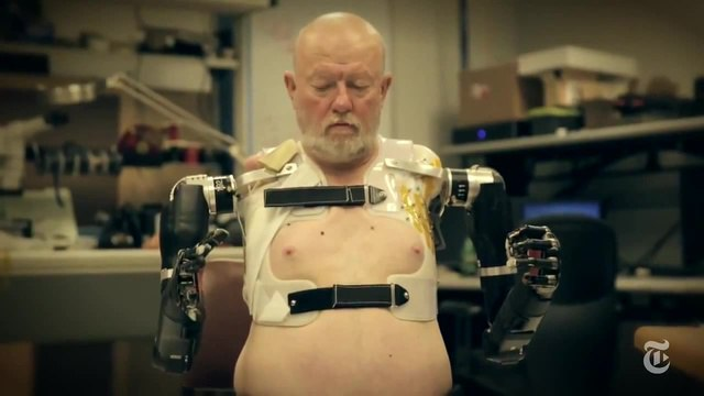 First Person With Two Mind-Controlled Robotic Prosthetic Arms