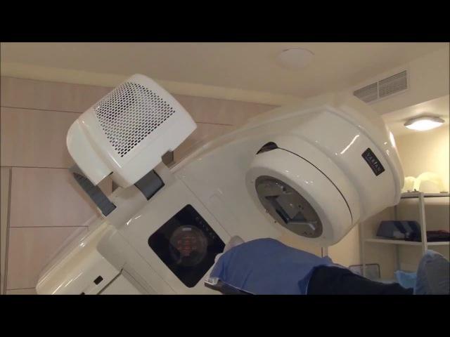 Конформная радиотерапия в МИБС
