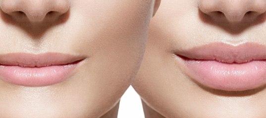 А если губы слишком тонкие ?