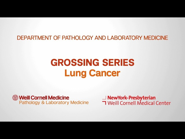Grossing Lung Pathology Specimens Department of Pathology and Laboratory Medicine