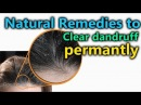 Clear dandruff in one night || apply this