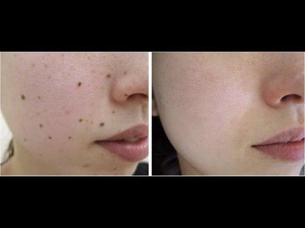 Verrugas En El Cuello, Como Borrar Lunares De La Cara, Como Quitar Las Verrugas Del Cuello