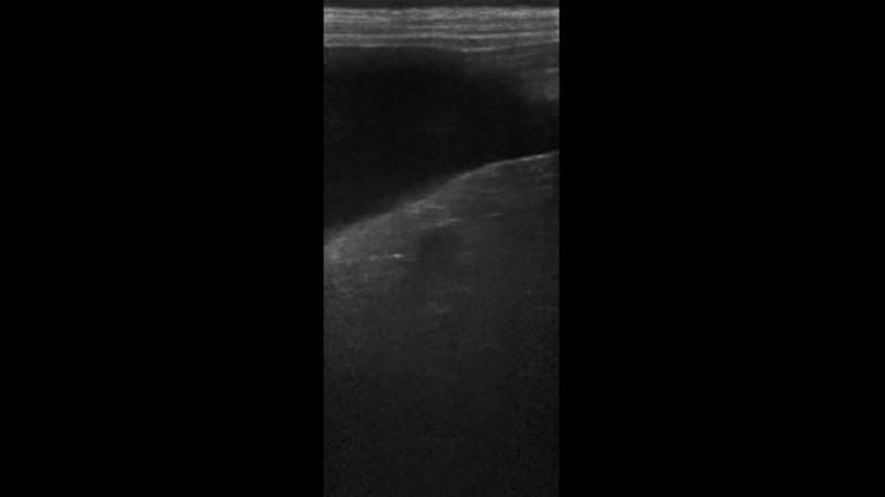 инфаркт селезенки шар-пей 6 лет2