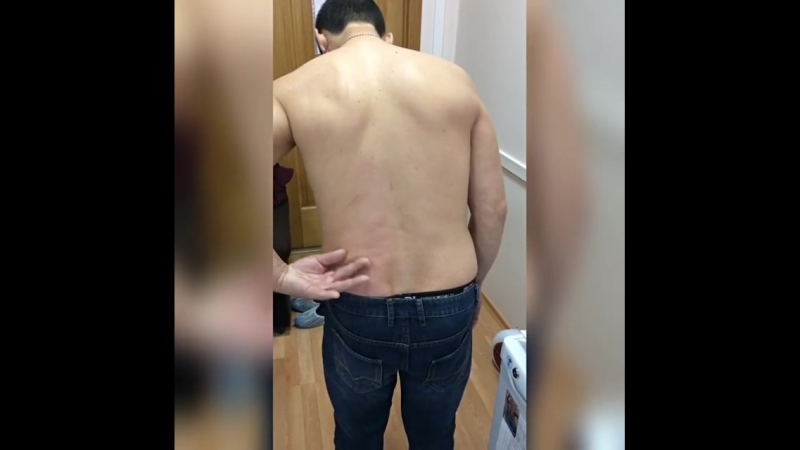 FDM-терапия. Пациент с болью в спине. До и после лечения с применением FDM терапии, кинезиотейпирования.