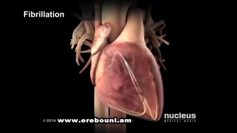 Катетерная абляция при аритмиях