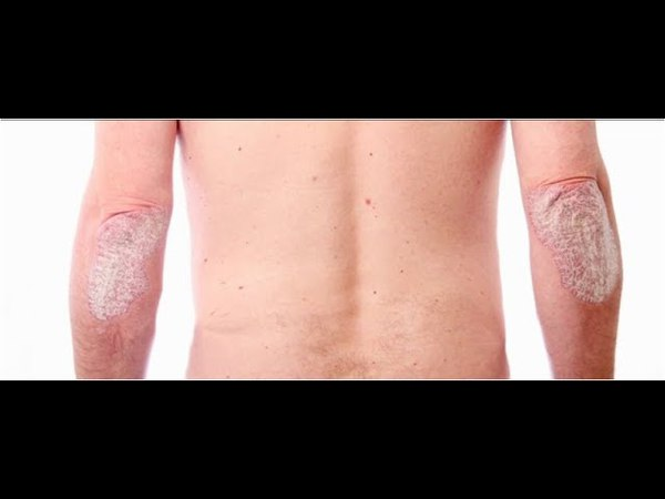 How To Get Rid Of Ringworm Overnight, What Is Ringworm And How Do You Get It, Best Cure For Ringworm