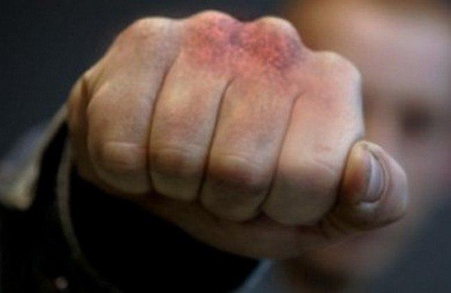 Пьяный 61-летний таганрожец ударил кулаком в голову полицейского при исполнении
