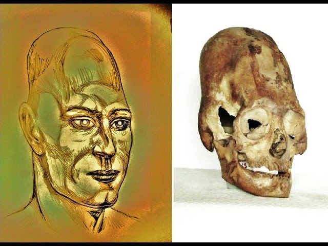 Interview with Brien Foerster: Unravelling the Genetics of Elongated Human Skulls