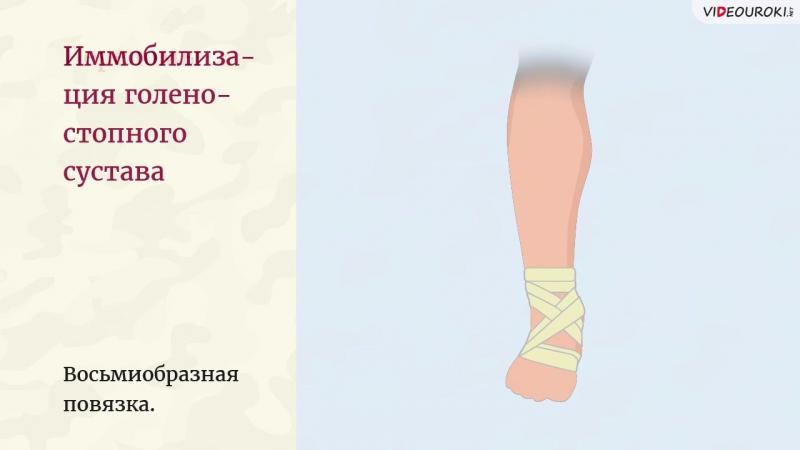 34. Оказание первой помощи при ушибах и переломах