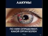 Твои глаза расскажут всё о твоём здоровье! / Ого! Вот это открытия!