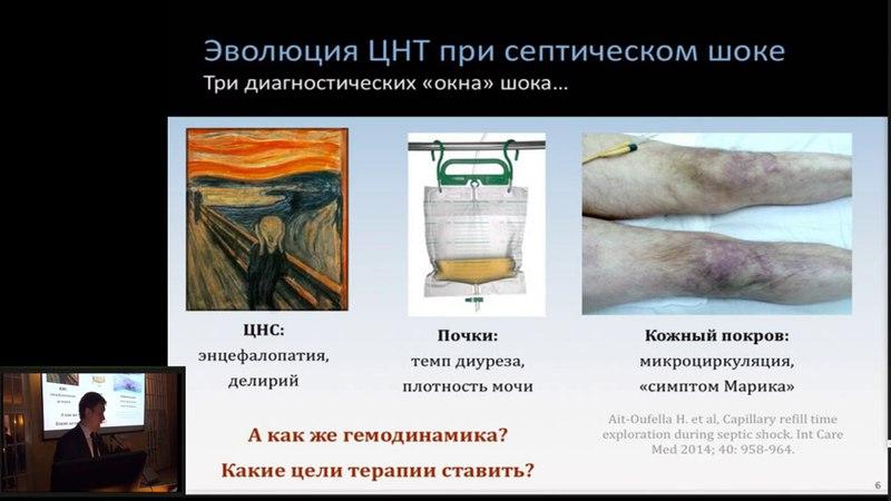 Мониторинг и целенаправленная терапия при септическом шоке что нас ждет завтра Кузьков В В