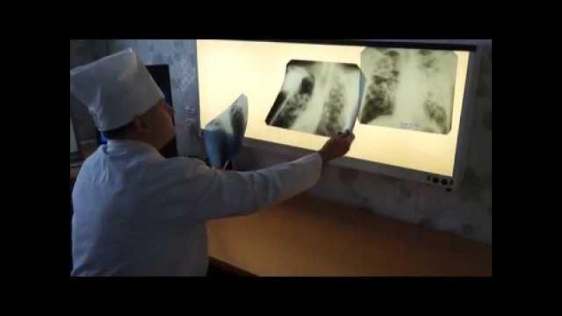 В зоне риска по заболеваемости Вич-инфекцией старшее поколение серовчан