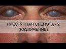 ПРЕСТУПНАЯ СЛЕПОТА - 2 (РАЗЛИЧЕНИЕ)