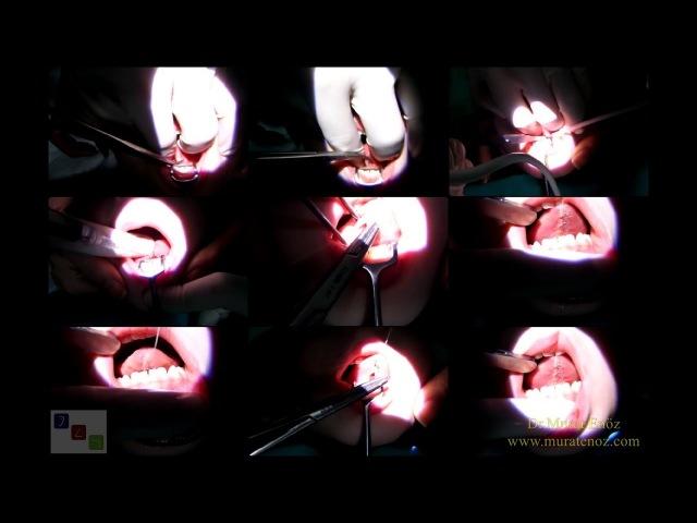 Thermal Welding İle Dil Bağı Çıkarılması (Lingual Frenektomi) Operasyonu