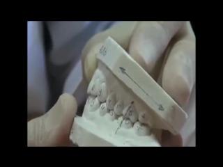 Диагностика перекрестного прикуса.Пропедевтика ортодонтии.