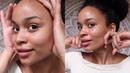 Öl-Massage-Trick gegen Pickel, Narben, Falten müde Haut • strahlend ohne Make Up