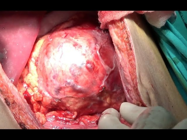 Open Distal Pancreatectomy With Splenic Preservation for pseudopapillary neoplasm FULL HD