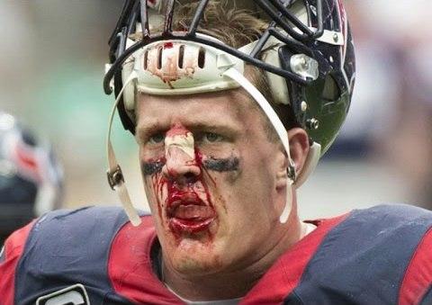 Травма американский футбол