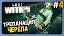 Lost Within Прохождение 4 ✅ ТРЕПАНАЦИЯ ЧЕРЕПА!