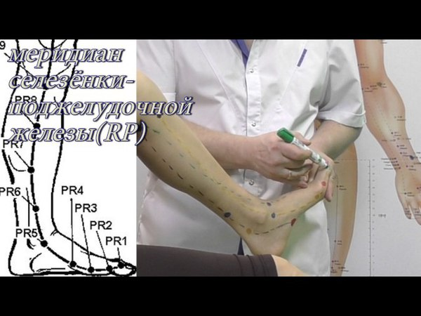Секреты китайской медицины (41). Точка Инь бай. Меридиан селезёнки- поджелудочной железы RP1.