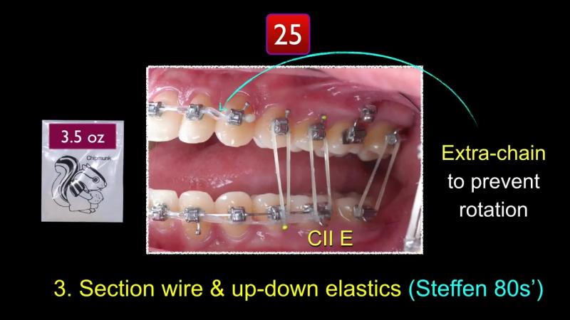 Simplify CII Correction Part 3.Ортодонтия.