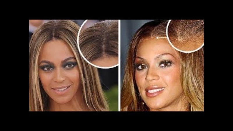 15 знаменитостей, которые носят парики и скрывают это.