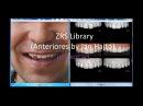 ZRS Libraries(Anteriores by Jan Hajtó) Exocad/дизайн улыбки с ZRS библиотеками