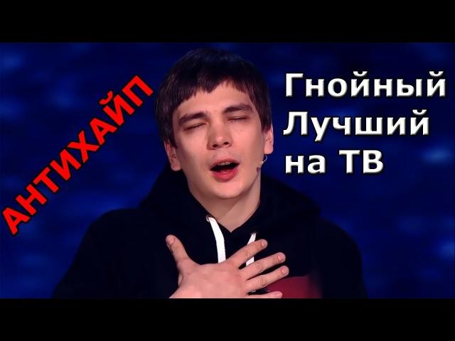 Гнойный на ТВ лучшееАНТИХАЙП на ТВУСПЕХ СТС